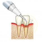 歯周病⑤歯周病初期治療って?