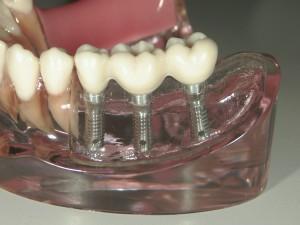 インプラントと入れ歯