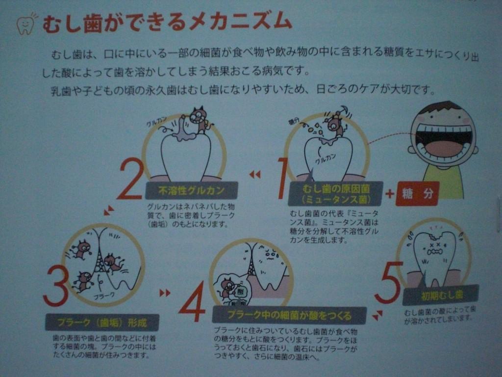 虫歯ができるメカニズム