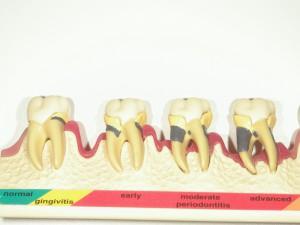 重度歯周病の父 5