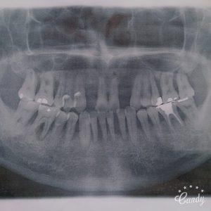重度歯周病の父
