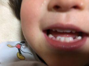 こんにち歯!